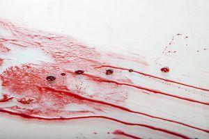 Sonhar com sangue
